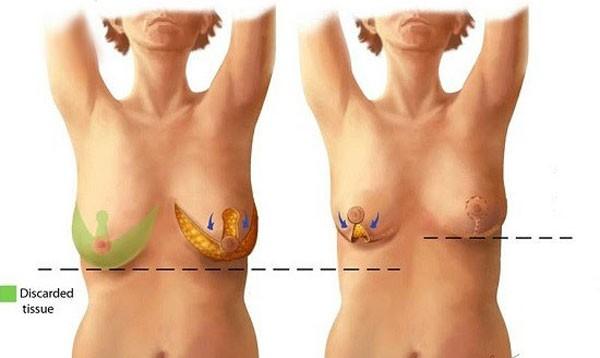 Những ưu điểm của treo vú sa trễ đường quầng vú