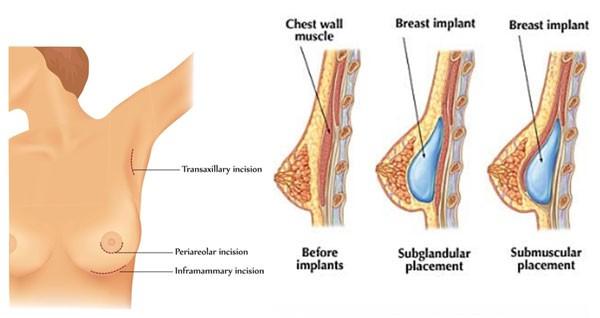 Phẫu thuật nâng ngực nội soi có những ưu điểm gì?