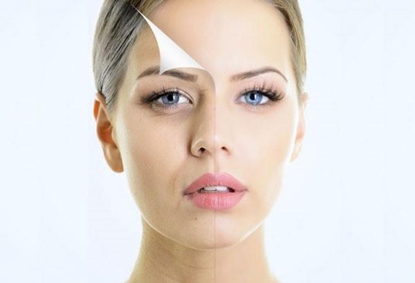 Tất tần tật những điều cần biết về cấy mỡ mặt.