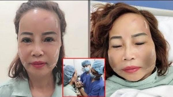 Cấy mỡ mặt có để lại biến chứng không?