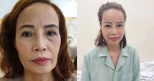 Cấy mỡ mặt có những ưu điểm gì?