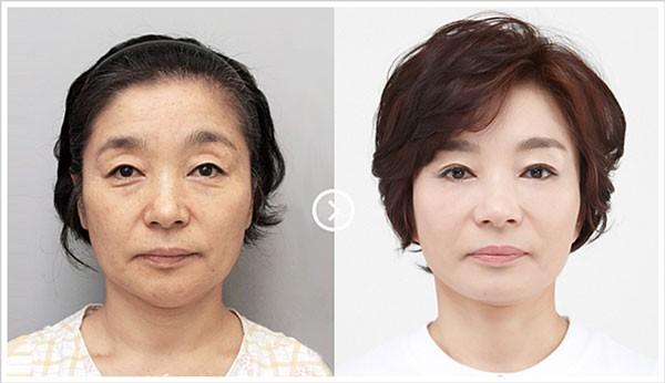 Cấy mỡ mặt duy trì được bao lâu? làm sao để có kết quả lâu dài
