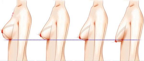 Hướng dẫn chăm sóc sau treo ngực sa trễ