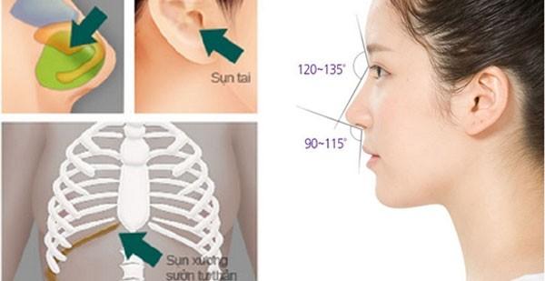 Chất liệu nâng mũi nào an toàn và hiệu quả cao nhất hiện nay?