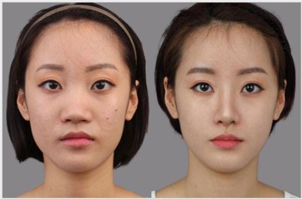 Khuôn mặt thay đổi thế nào sau khi nâng mũi