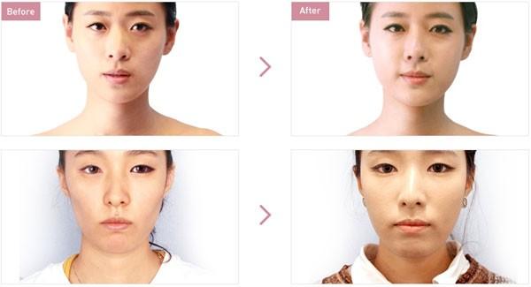Quy trình cấy mỡ mặt diễn ra như thế nào?