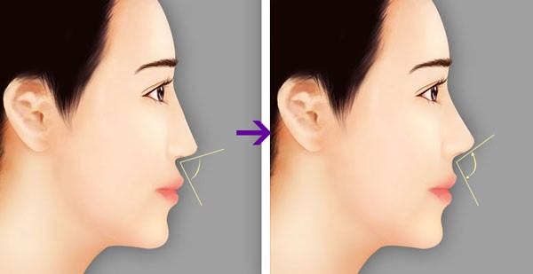Tiêu chuẩn một chiếc mũi đẹp là mũi như thế nào?