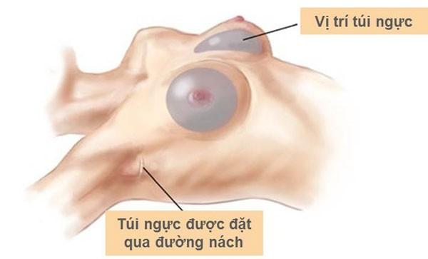 Kinh nghiệm nâng ngực nội soi