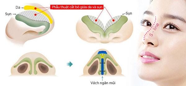 Nâng mũi bọc sụn vách ngăn S line