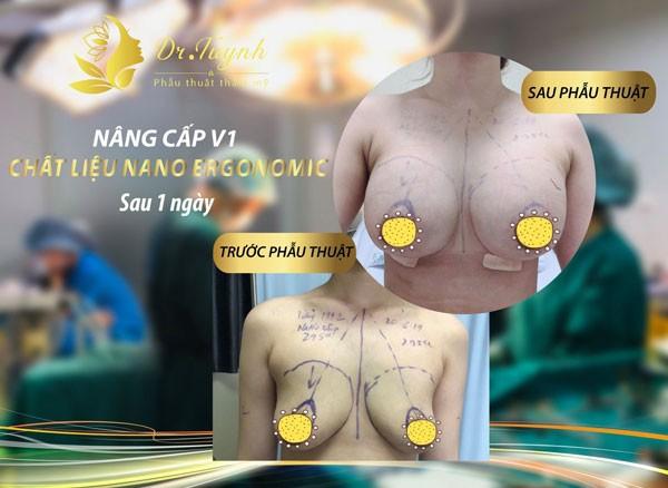 Nâng ngực nội soi ở đâu tốt?