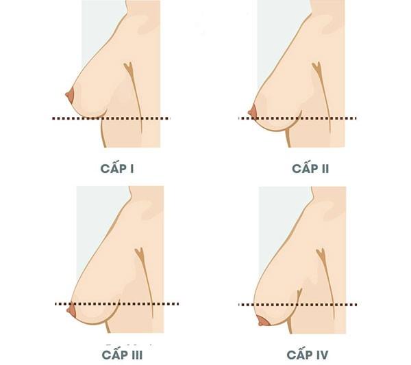 phương pháp treo ngực sa trễ