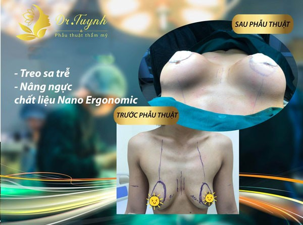 Treo ngực sa trễ có ảnh hưởng gì không?